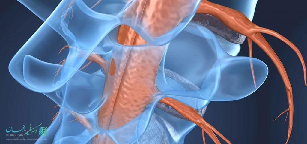 عوارض عمل تومور نخاعی
