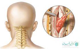 عوارض جراحی تومور نخاعی