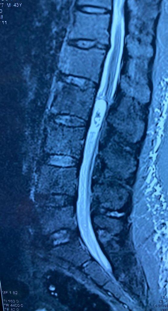 جراحی تومور نخاع کمری