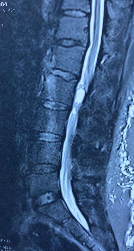 تومور نخاع کمری