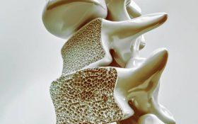 پوکی استخوان در ستون فقرات