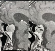 عمل جراحی تومور هیپوفیز