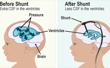 آیا شنت مغزی دائمی است