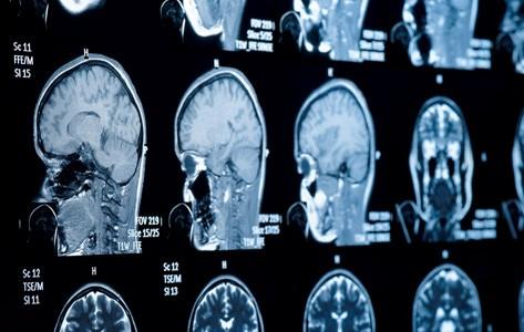 انواع تومور های قاعده جمجمه
