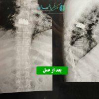 جراحی تومور همانژيوما