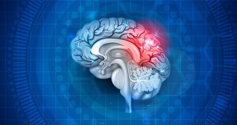 آیا ضربه مغزی باعث مرگ می شود