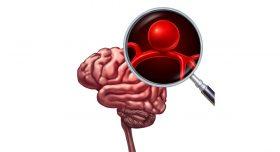 انواع آنوریسم مغزی