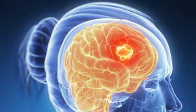 علائم تومور مغزی در زنان
