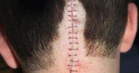 عوارض بعد از عمل تومور مخچه