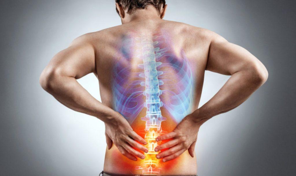 درمان های پارگی دیسک کمر