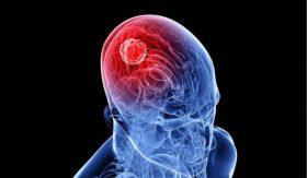 آیا تومور مغزی بدخیم قابل درمان است