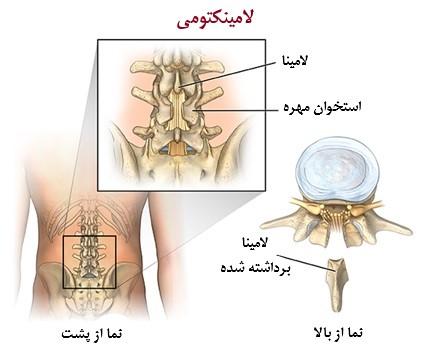 جراحی لامینکتومی