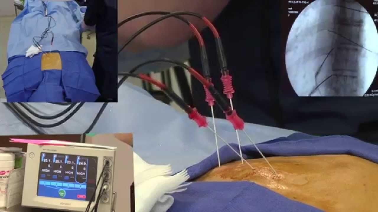 جراحی تنگی کانال نخاع