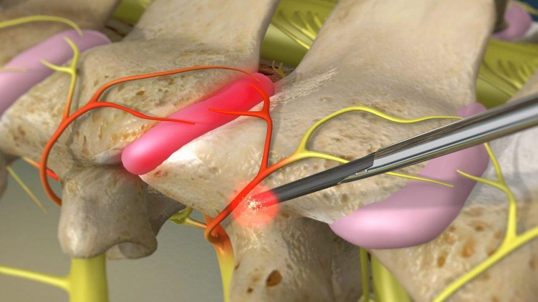 درمان تنگی کانال نخاع