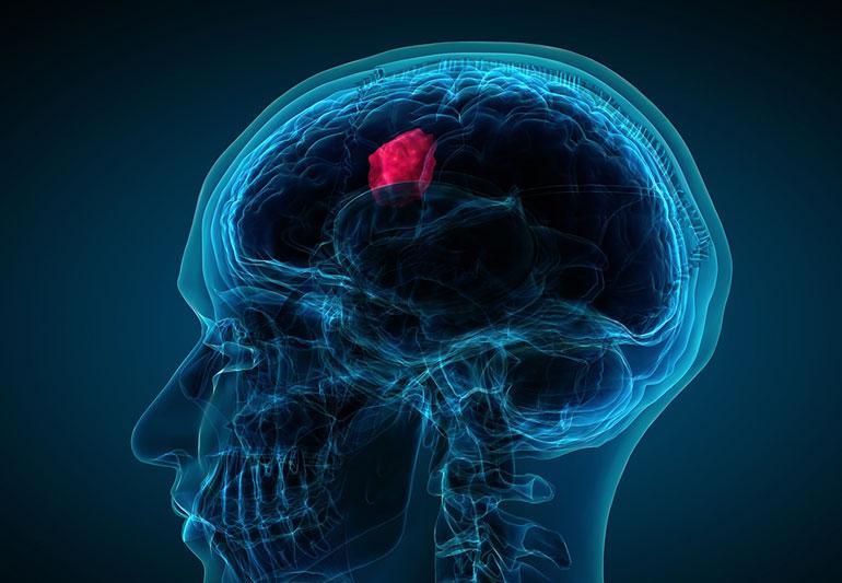 عوارض تومور مغزی