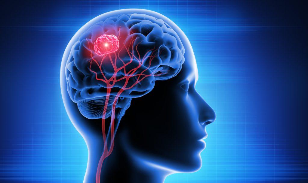 مراقبت های بعد از تومور مغزی